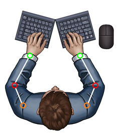 Splayed Keyboard               Eliminates Ulnar Deviation But Can Cause Elbow Abduction -               SeparatedKeyboards.com